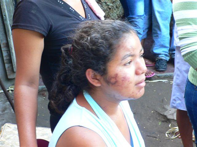 woman from El Salvador, bruised after flood